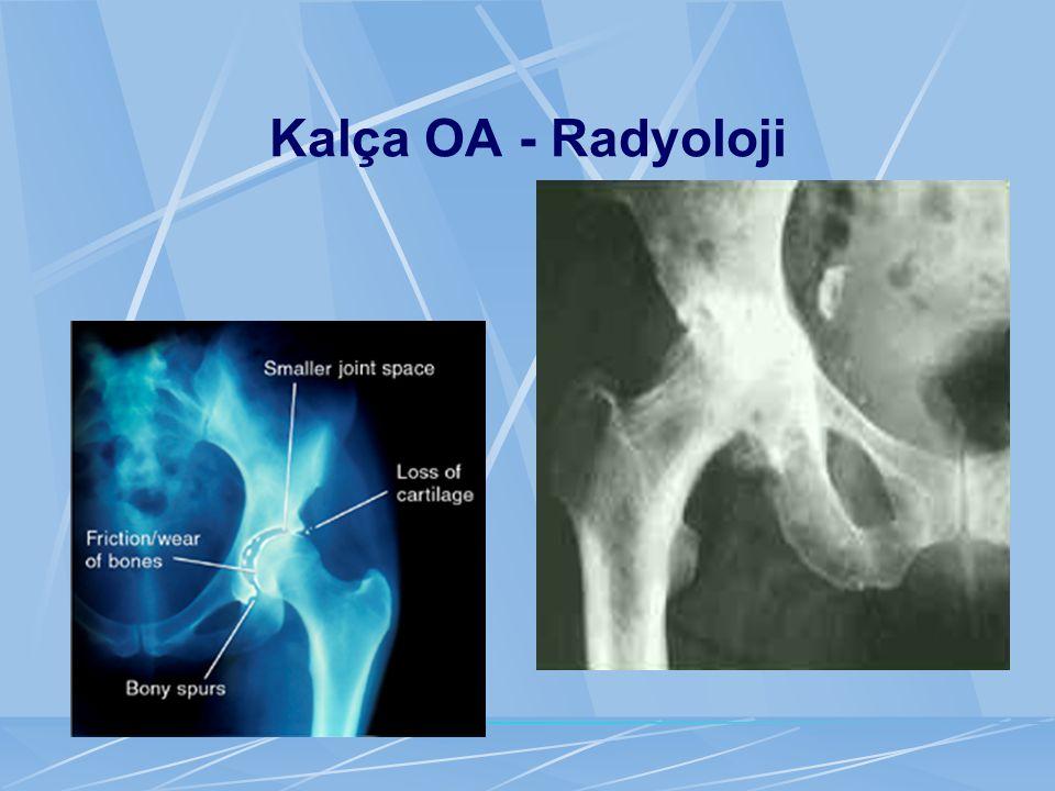 Kalça OA - Radyoloji
