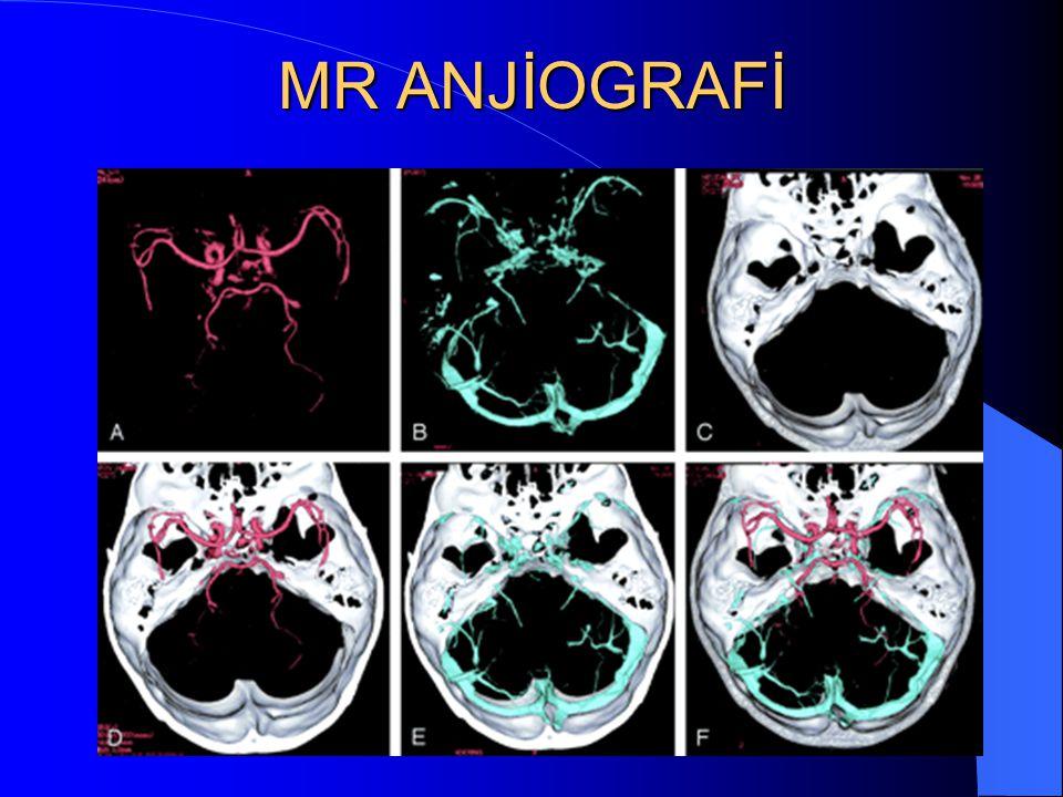 MR ANJİOGRAFİ