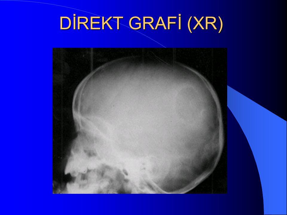 DİREKT GRAFİ (XR)