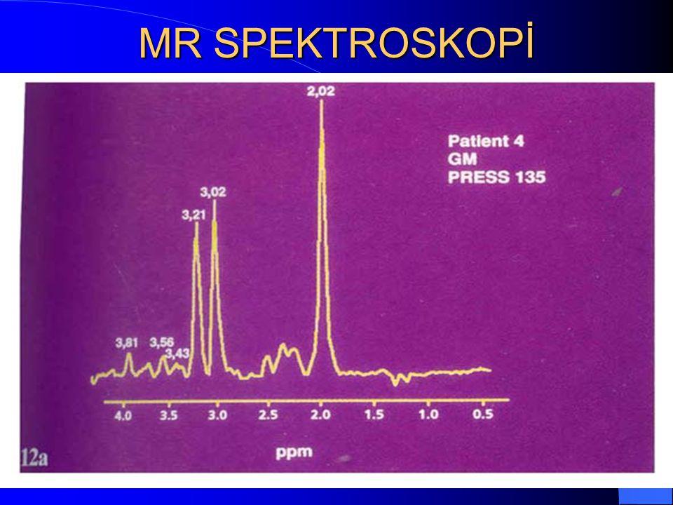 MR SPEKTROSKOPİ