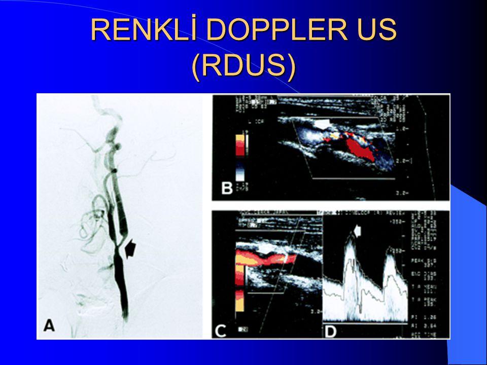 RENKLİ DOPPLER US (RDUS)