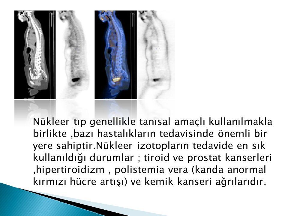 Nükleer tıp genellikle tanısal amaçlı kullanılmakla birlikte ,bazı hastalıkların tedavisinde önemli bir yere sahiptir.Nükleer izotopların tedavide en sık kullanıldığı durumlar ; tiroid ve prostat kanserleri ,hipertiroidizm , polistemia vera (kanda anormal kırmızı hücre artışı) ve kemik kanseri ağrılarıdır.