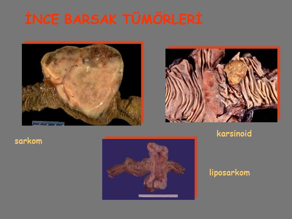 İNCE BARSAK TÜMÖRLERİ karsinoid sarkom liposarkom