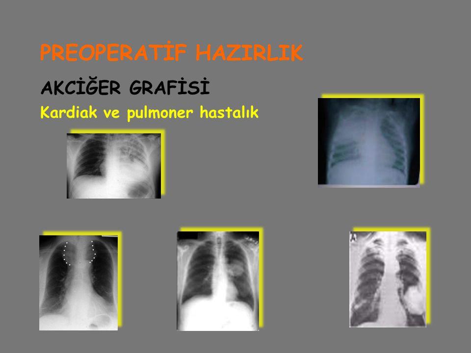 PREOPERATİF HAZIRLIK AKCİĞER GRAFİSİ Kardiak ve pulmoner hastalık
