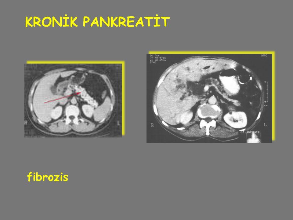 KRONİK PANKREATİT fibrozis