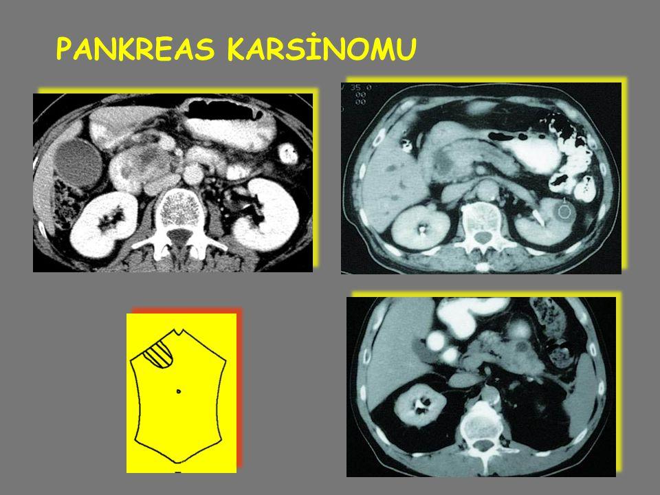 PANKREAS KARSİNOMU
