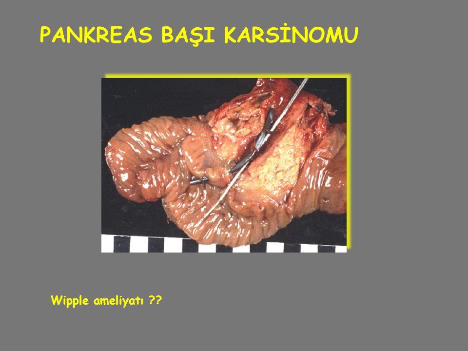 PANKREAS BAŞI KARSİNOMU