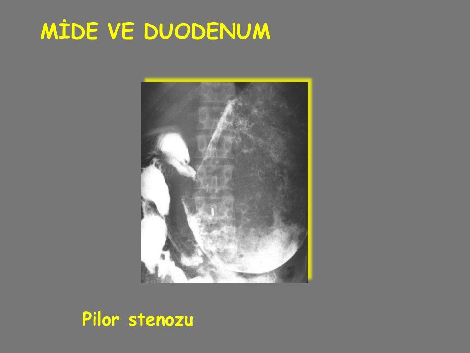 MİDE VE DUODENUM Pilor stenozu