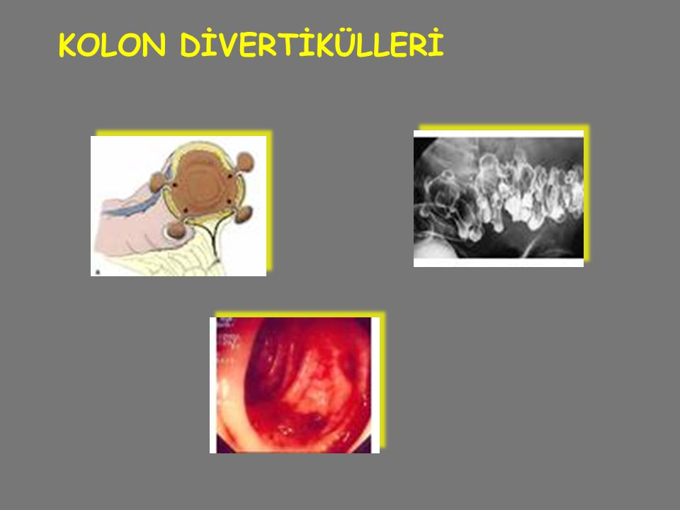 KOLON DİVERTİKÜLLERİ