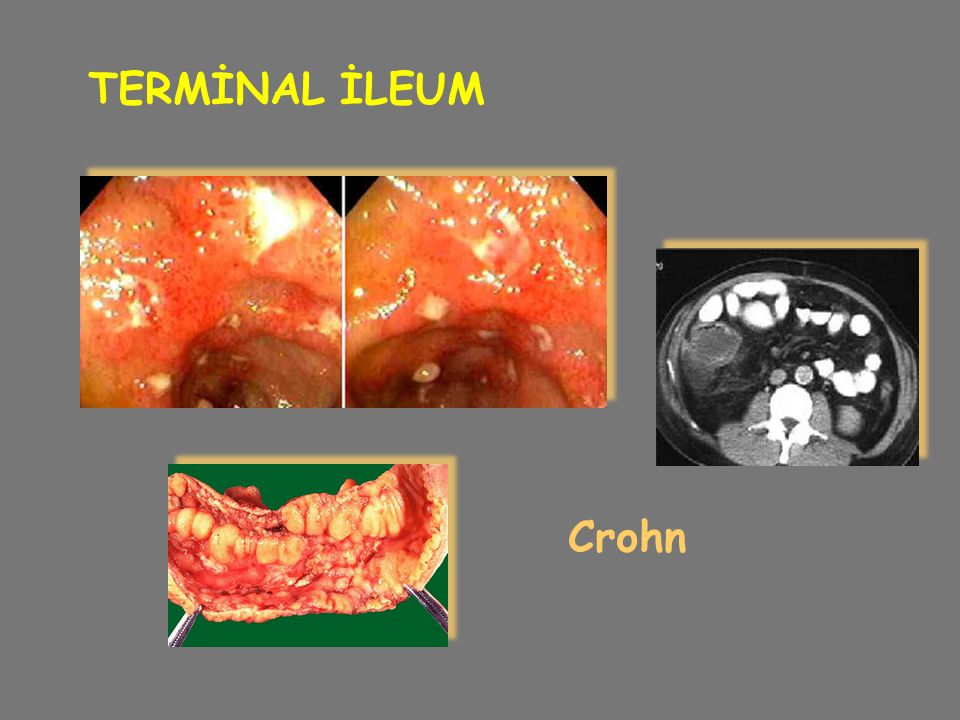 TERMİNAL İLEUM Crohn