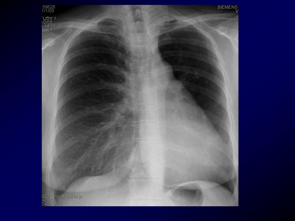 İnfantveya küçük çocukluk sırasında geçirilen enfeksiyona bağlı obliteratif bronşiolit sonucudur.