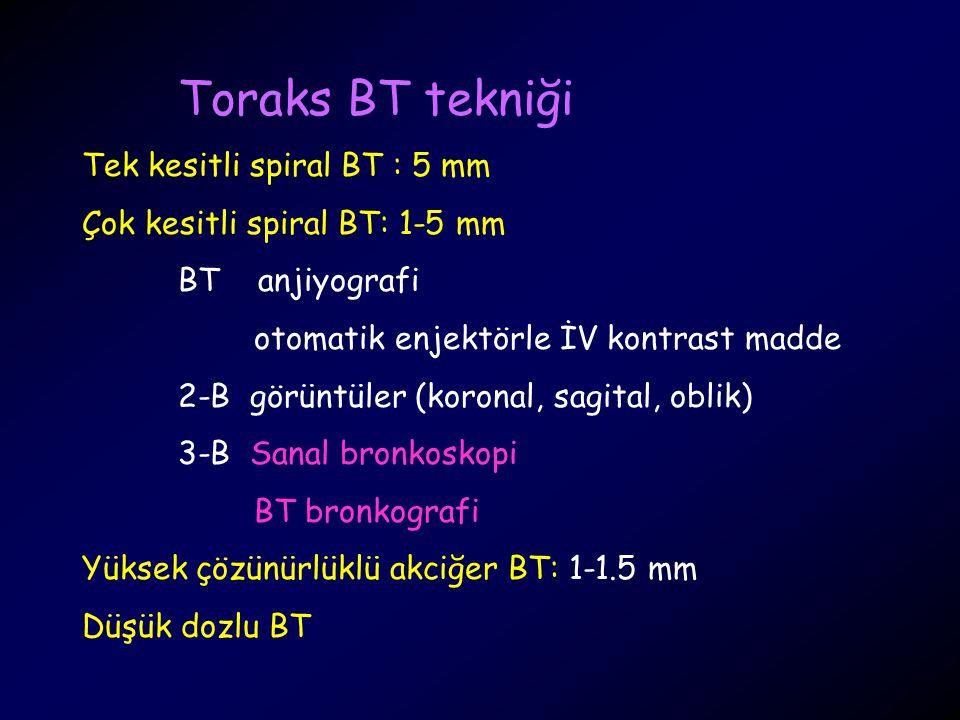 Toraks BT tekniği Tek kesitli spiral BT : 5 mm