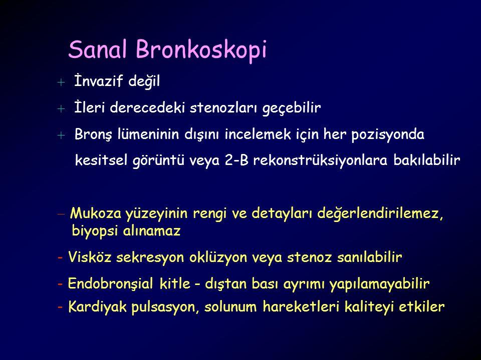Sanal Bronkoskopi İnvazif değil İleri derecedeki stenozları geçebilir
