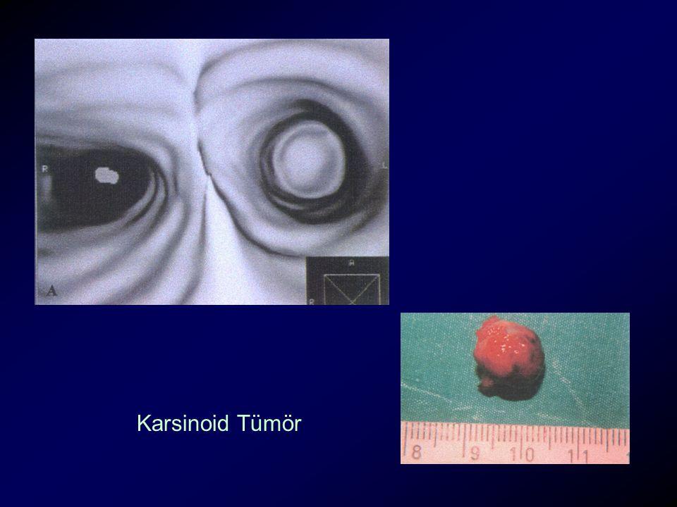 Karsinoid Tümör