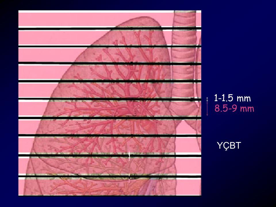 1-1.5 mm 8.5-9 mm YÇBT