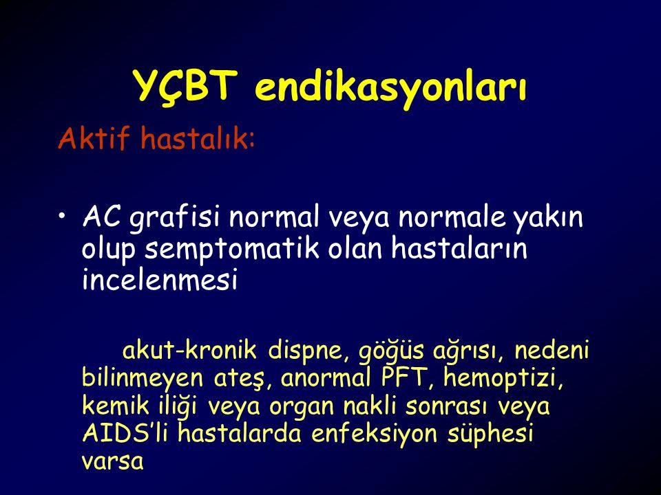 YÇBT endikasyonları Aktif hastalık: