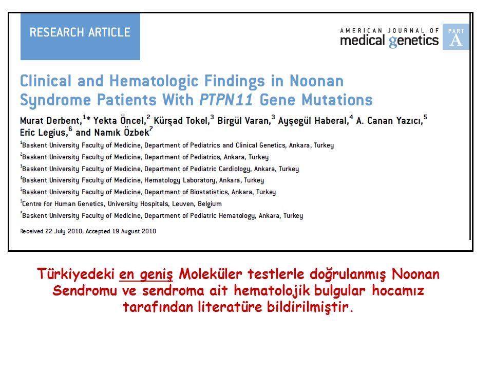 Türkiyedeki en geniş Moleküler testlerle doğrulanmış Noonan Sendromu ve sendroma ait hematolojik bulgular hocamız tarafından literatüre bildirilmiştir.