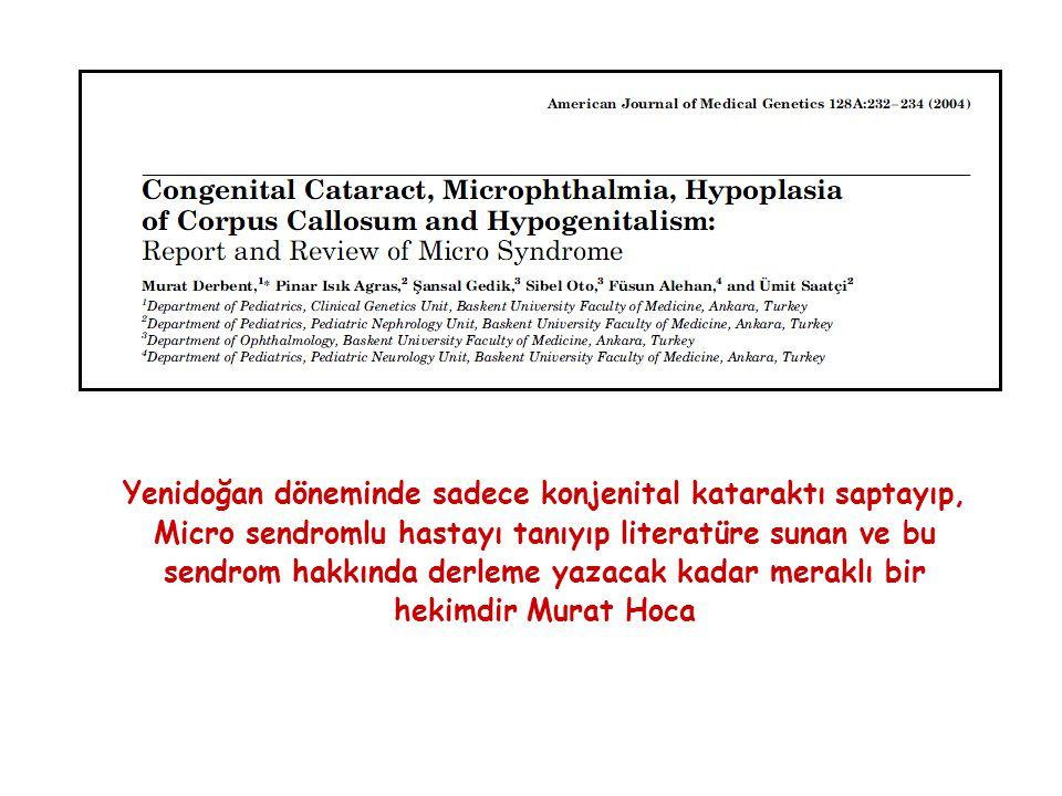 Yenidoğan döneminde sadece konjenital kataraktı saptayıp, Micro sendromlu hastayı tanıyıp literatüre sunan ve bu sendrom hakkında derleme yazacak kadar meraklı bir hekimdir Murat Hoca
