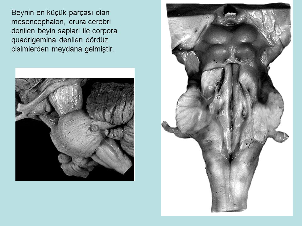 Beynin en küçük parçası olan mesencephalon, crura cerebri denilen beyin sapları ile corpora quadrigemina denilen dördüz cisimlerden meydana gelmiştir.