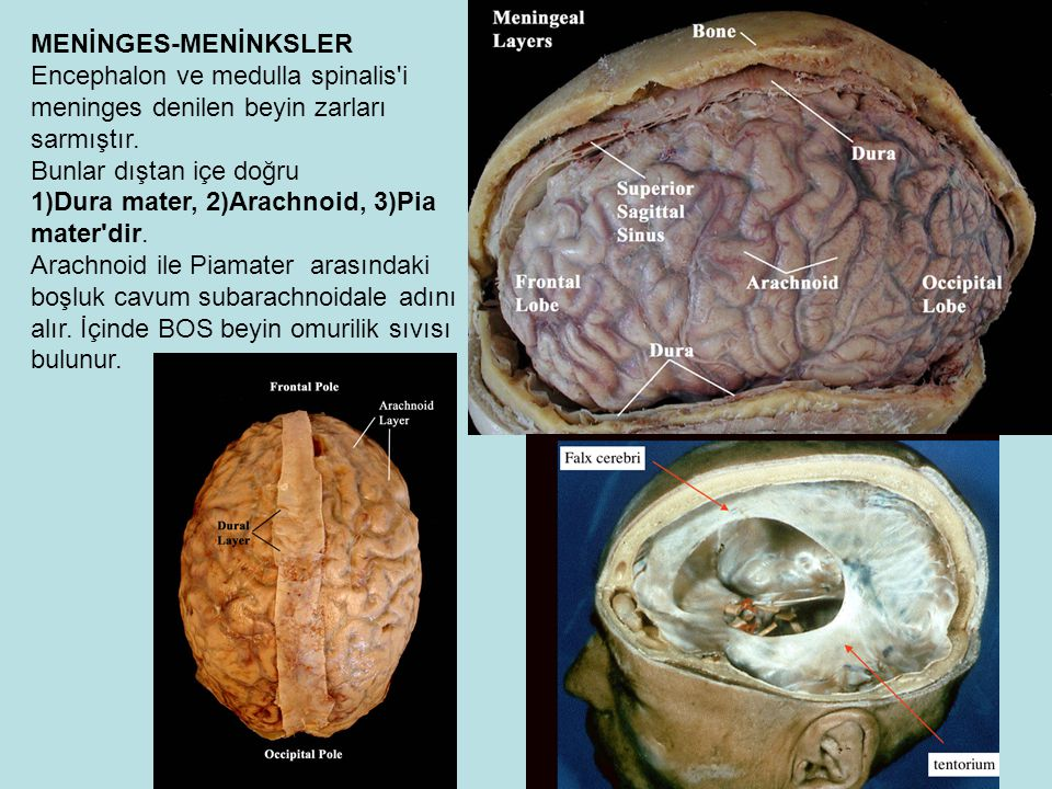 MENİNGES-MENİNKSLER Encephalon ve medulla spinalis i meninges denilen beyin zarları sarmıştır. Bunlar dıştan içe doğru.