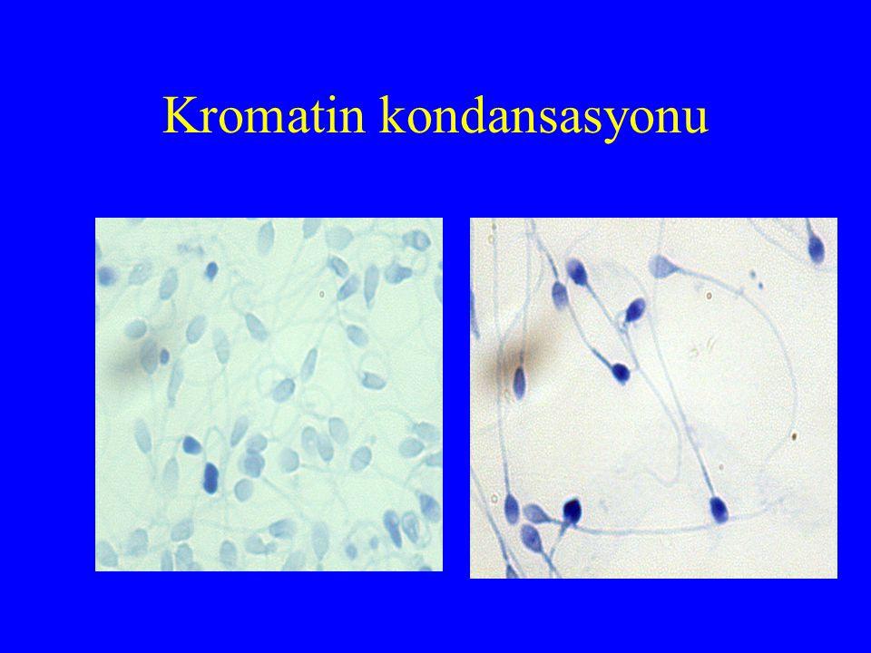 Kromatin kondansasyonu