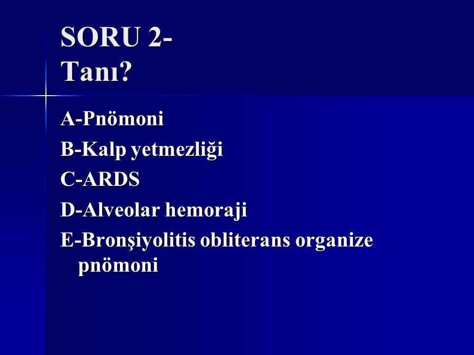 SORU 2- Tanı A-Pnömoni B-Kalp yetmezliği C-ARDS D-Alveolar hemoraji