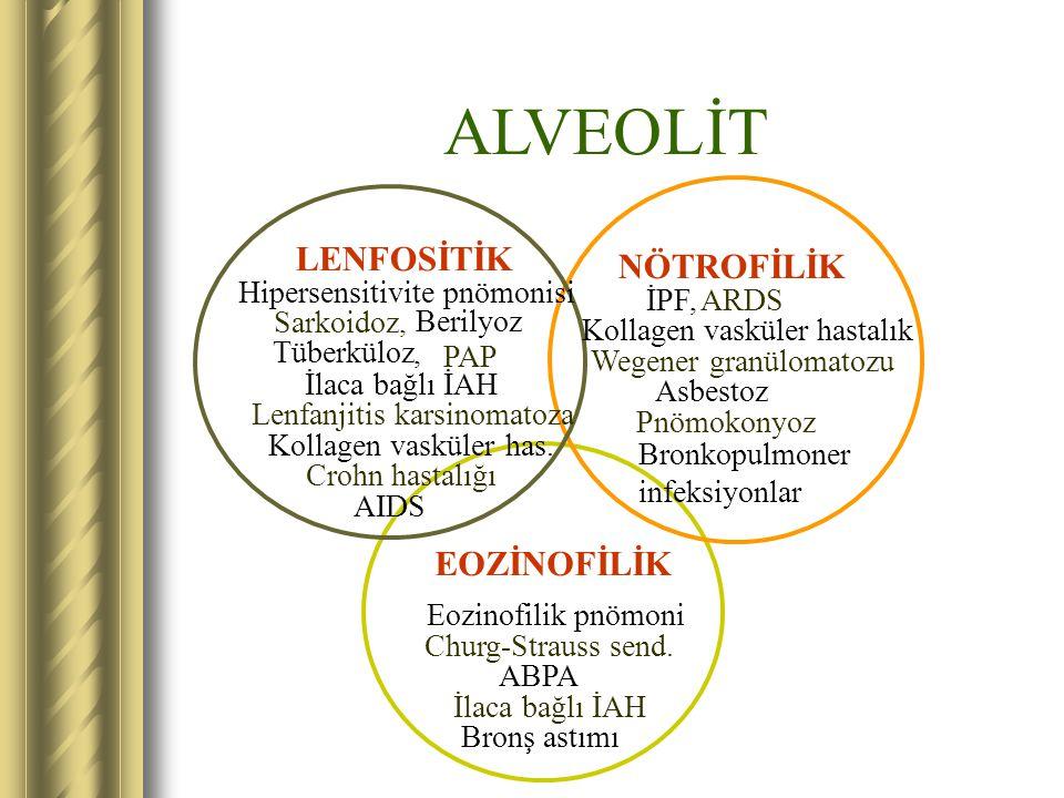 ALVEOLİT LENFOSİTİK NÖTROFİLİK EOZİNOFİLİK Hipersensitivite pnömonisi
