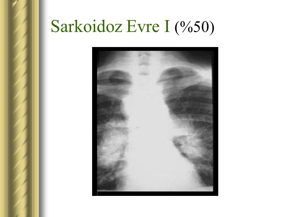 Sarkoidoz Evre I (%50)