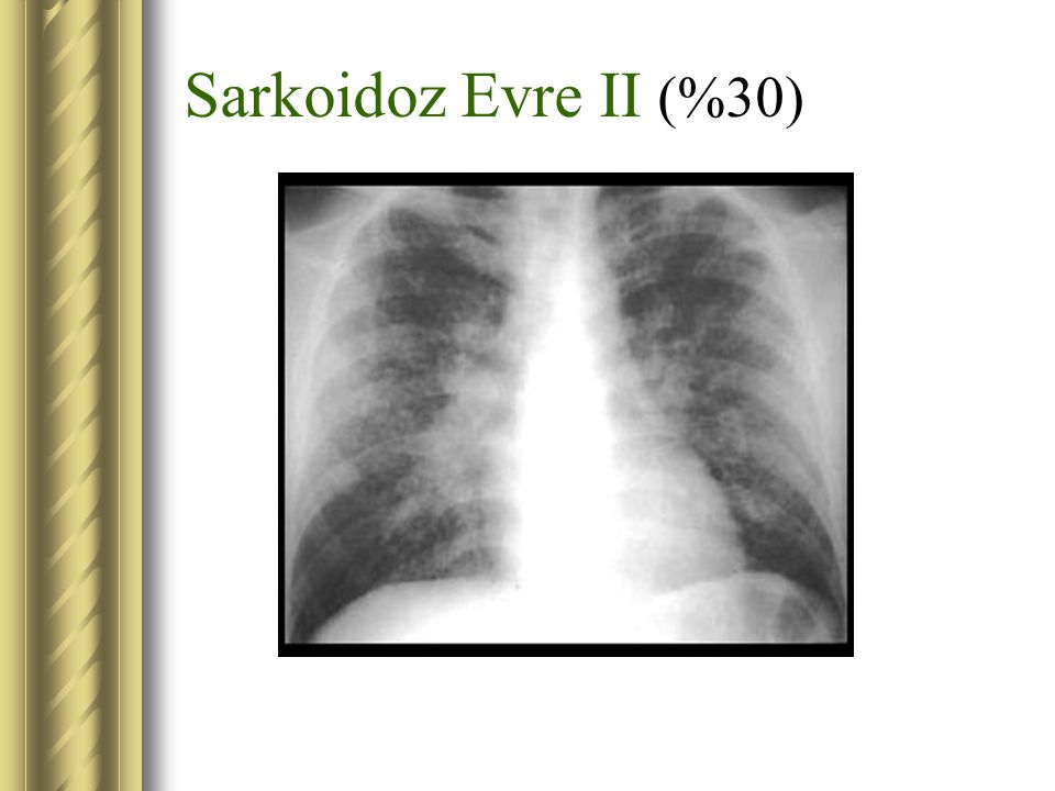Sarkoidoz Evre II (%30)