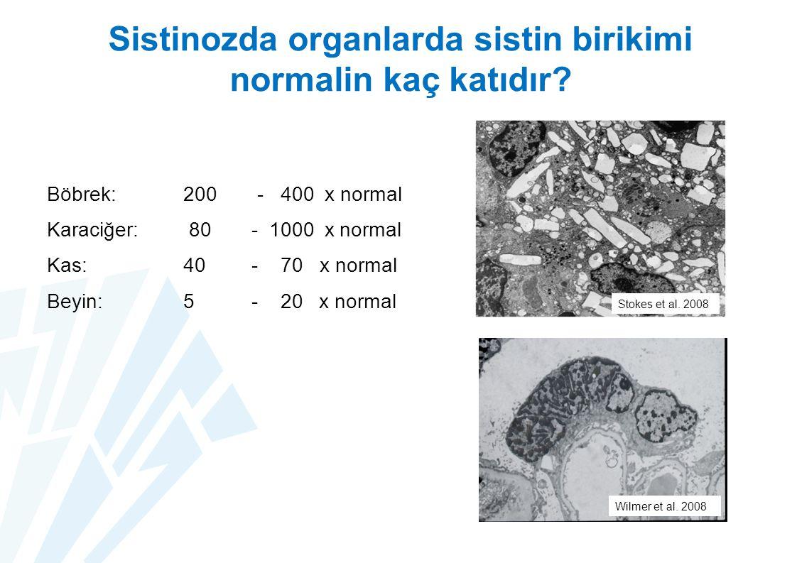 Sistinozda organlarda sistin birikimi normalin kaç katıdır