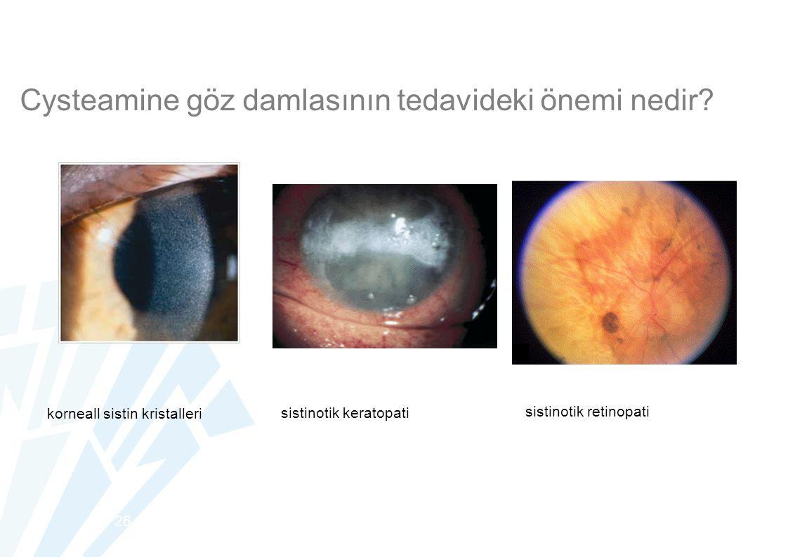 Cysteamine göz damlasının tedavideki önemi nedir