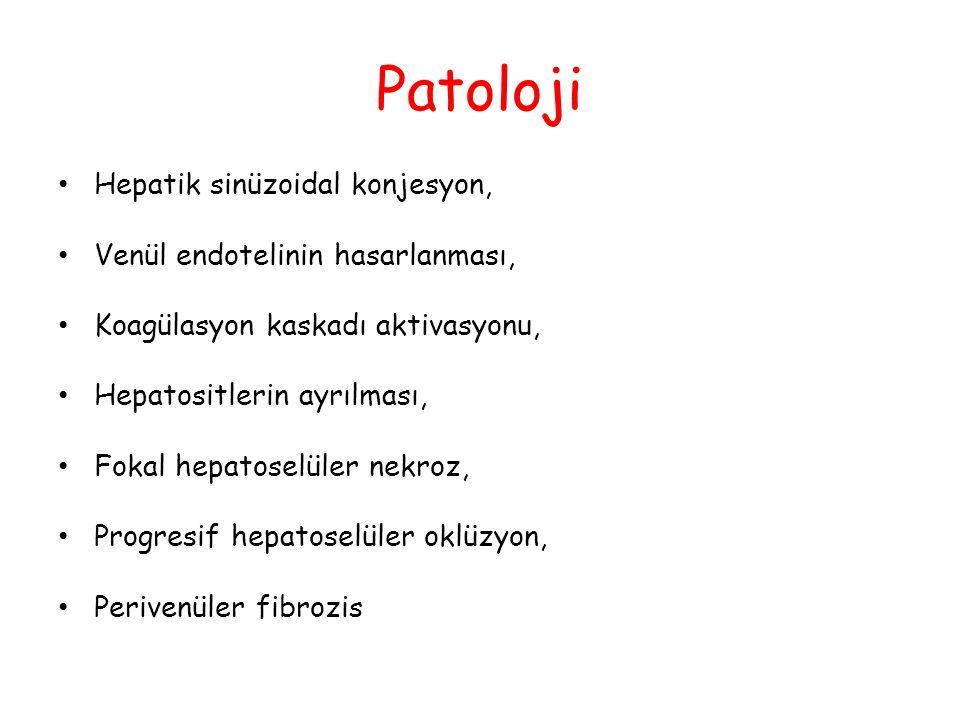Patoloji Hepatik sinüzoidal konjesyon, Venül endotelinin hasarlanması,