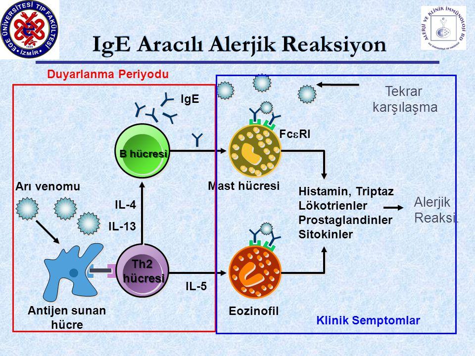 IgE Aracılı Alerjik Reaksiyon