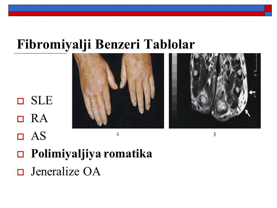 Fibromiyalji Benzeri Tablolar
