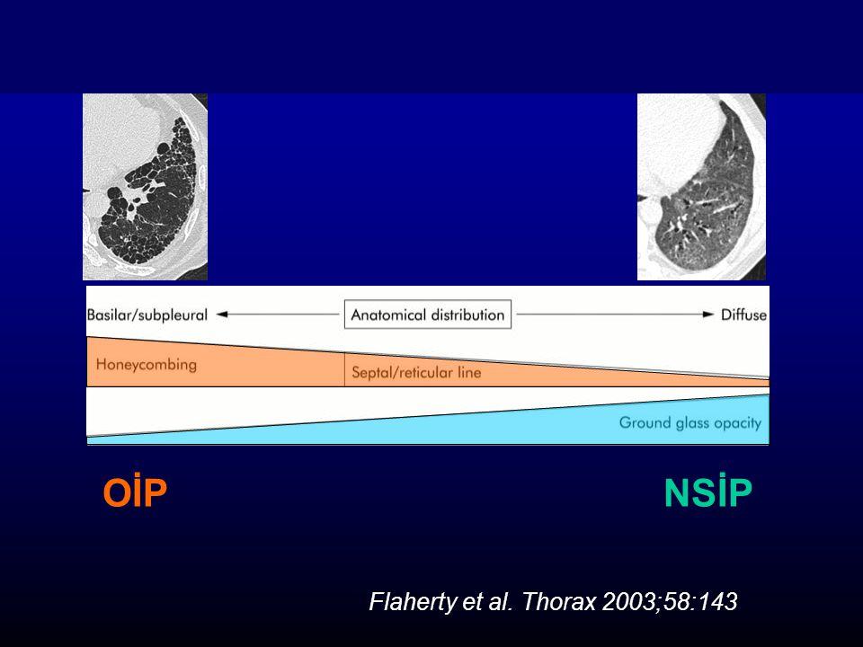 OİP NSİP Flaherty et al. Thorax 2003;58:143