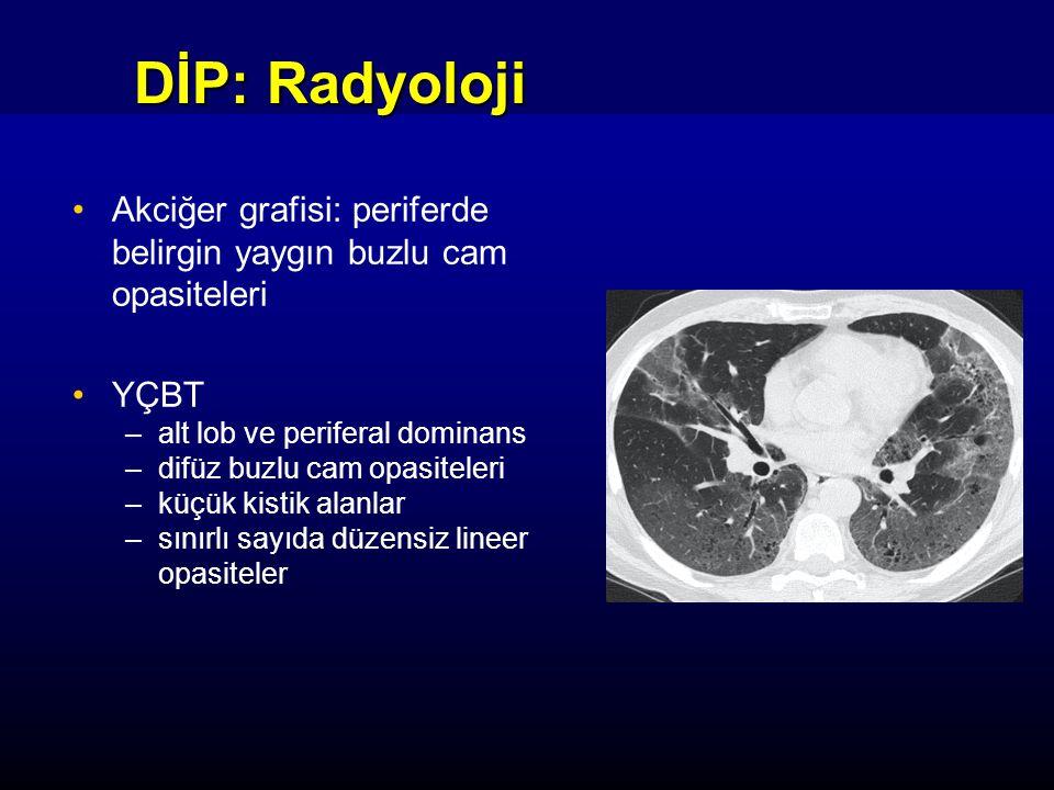 DİP: Radyoloji Akciğer grafisi: periferde belirgin yaygın buzlu cam opasiteleri. YÇBT. alt lob ve periferal dominans.