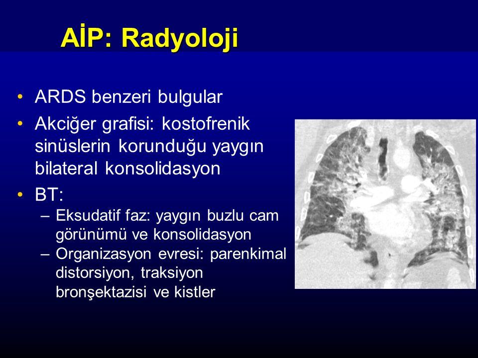 AİP: Radyoloji ARDS benzeri bulgular