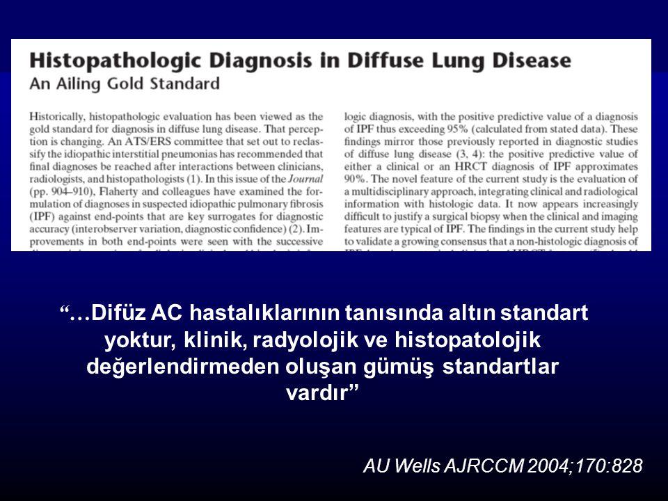 …Difüz AC hastalıklarının tanısında altın standart yoktur, klinik, radyolojik ve histopatolojik değerlendirmeden oluşan gümüş standartlar vardır