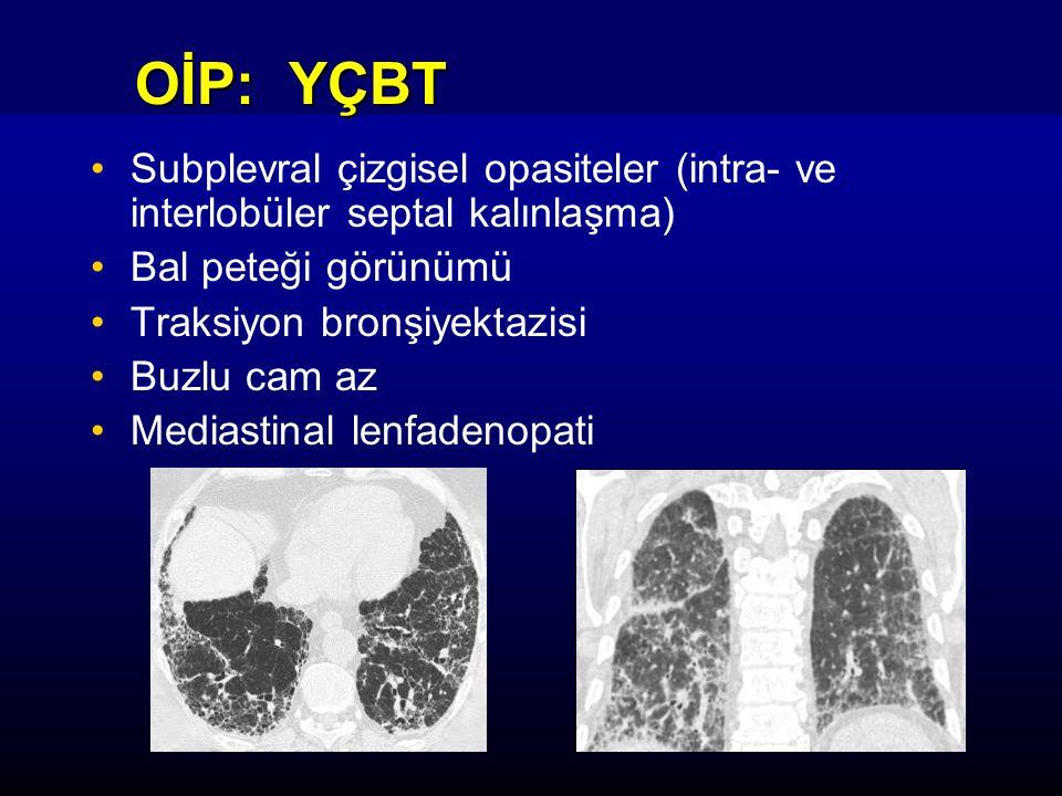 OİP: YÇBT Subplevral çizgisel opasiteler (intra- ve interlobüler septal kalınlaşma) Bal peteği görünümü.