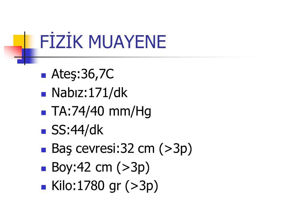 FİZİK MUAYENE Ateş:36,7C Nabız:171/dk TA:74/40 mm/Hg SS:44/dk