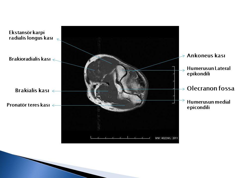 Olecranon fossa Ankoneus kası Brakialis kası Ekstansör karpi