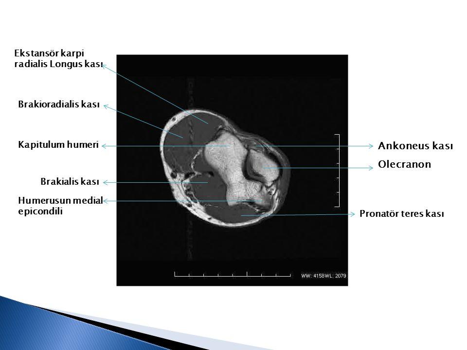 Ankoneus kası Olecranon Ekstansör karpi radialis Longus kası