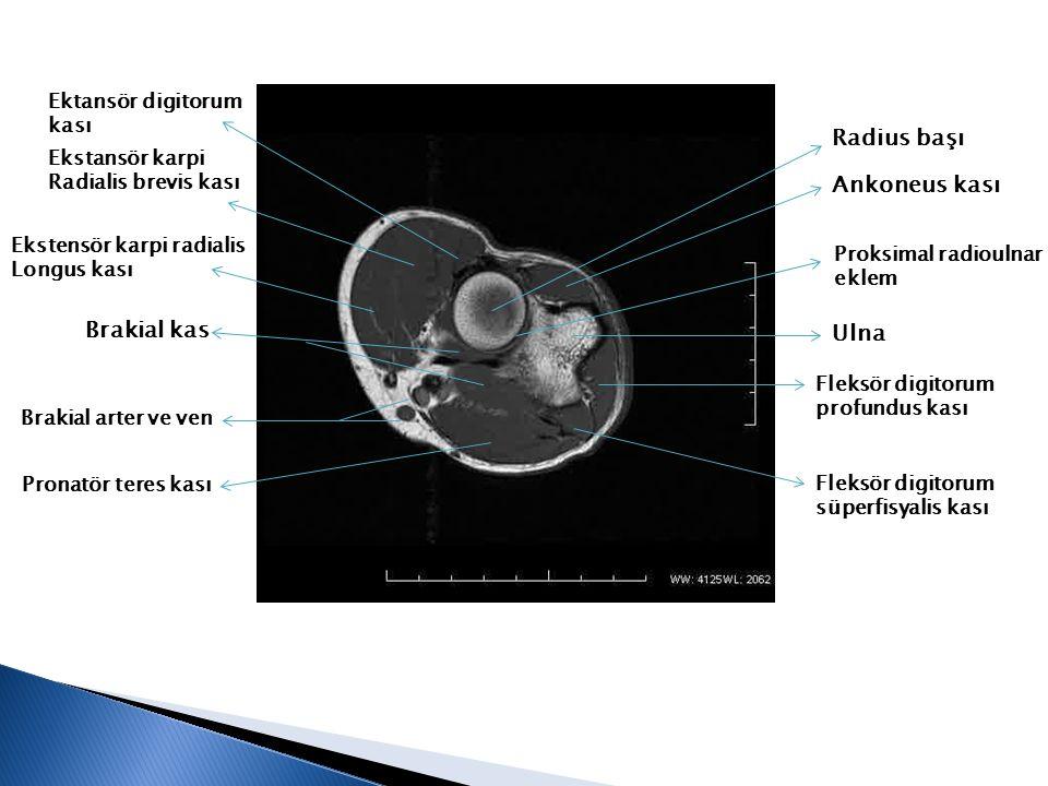 Radius başı Ankoneus kası Brakial kas Ulna Ektansör digitorum kası