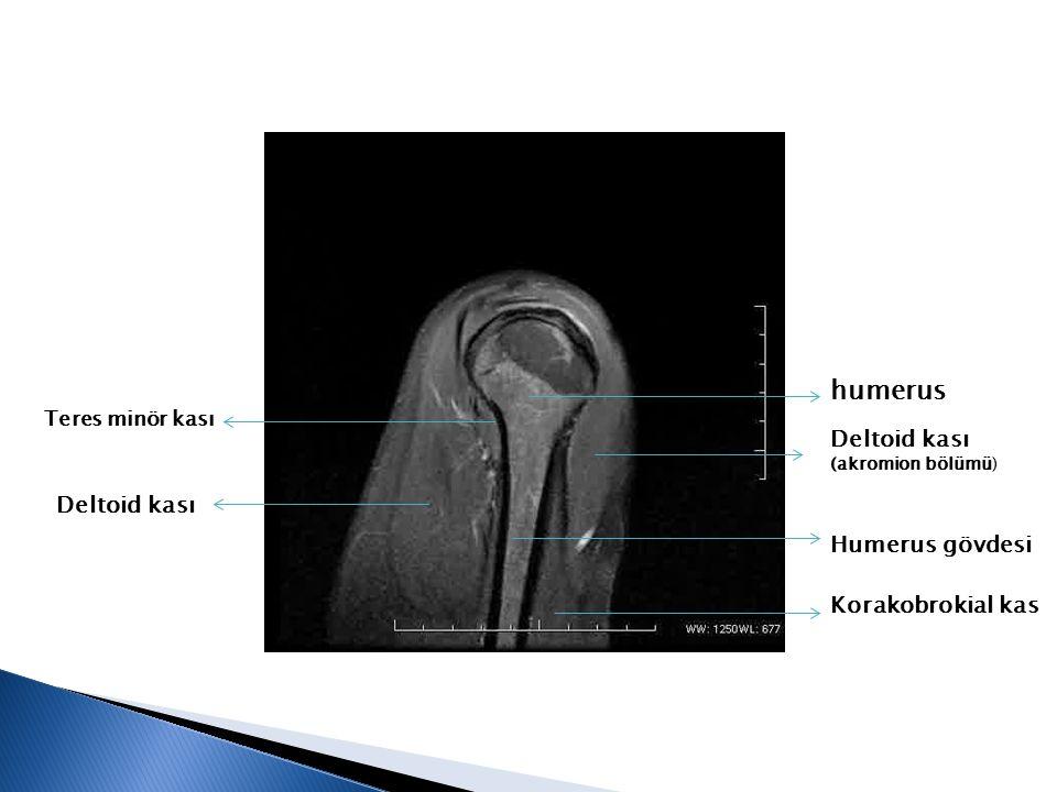 humerus Deltoid kası Deltoid kası Humerus gövdesi Korakobrokial kas