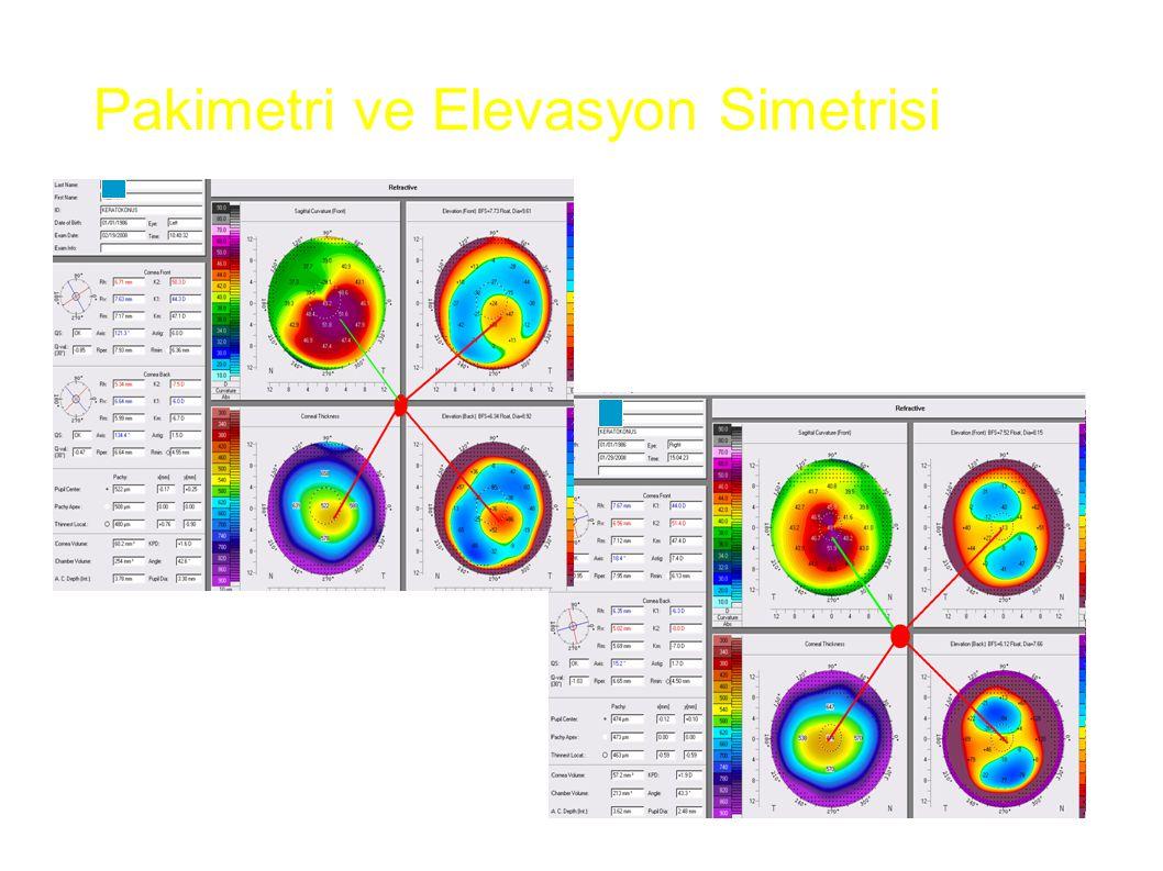 Pakimetri ve Elevasyon Simetrisi