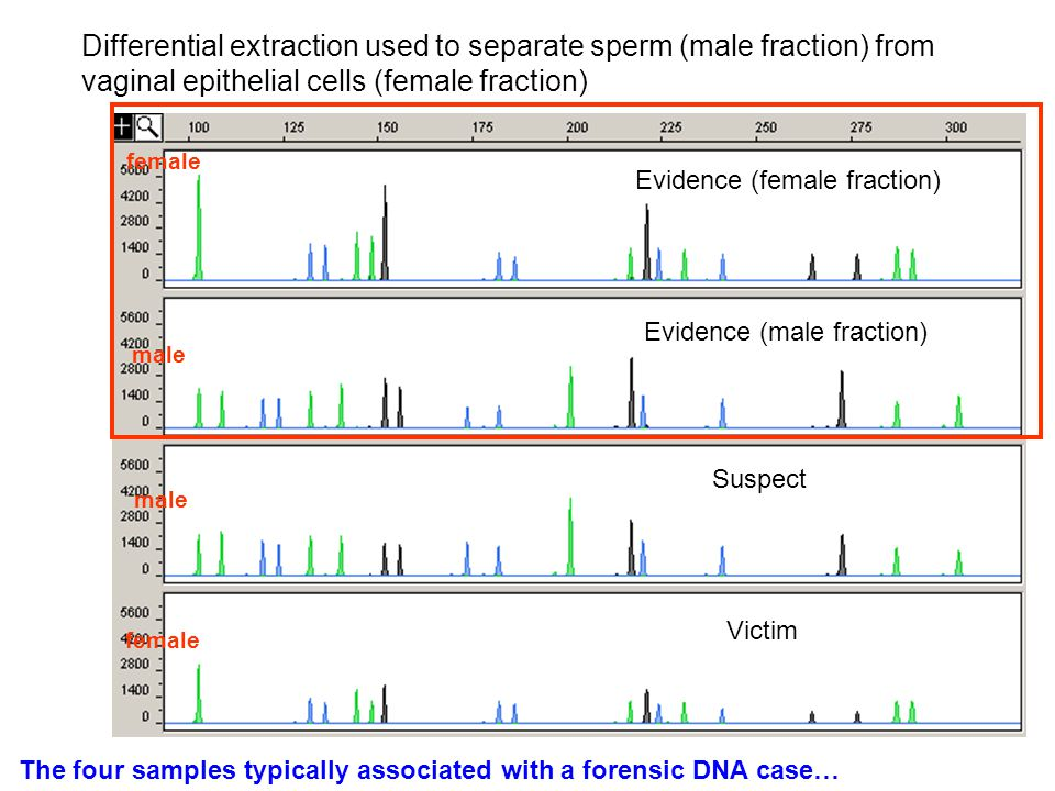 Differential extraction used to separate sperm (male fraction) from vaginal epithelial cells (female fraction)