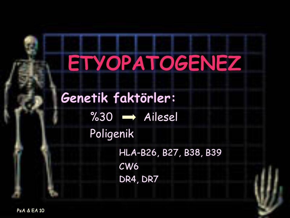 ETYOPATOGENEZ Genetik faktörler: %30 Ailesel HLA-B26, B27, B38, B39