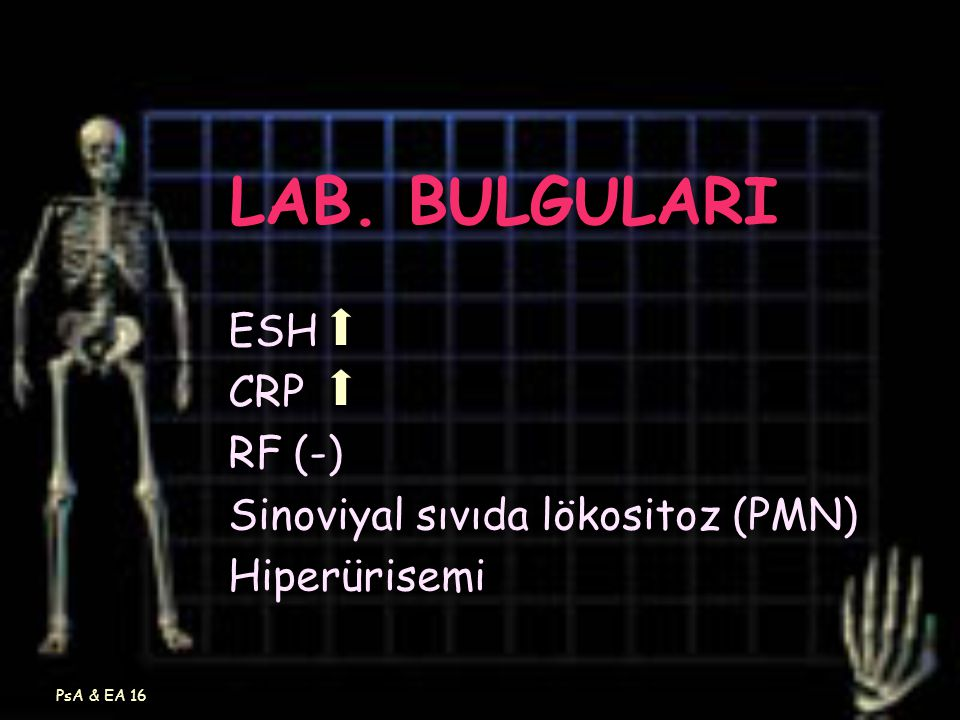 LAB. BULGULARI ESH CRP RF (-) Sinoviyal sıvıda lökositoz (PMN)