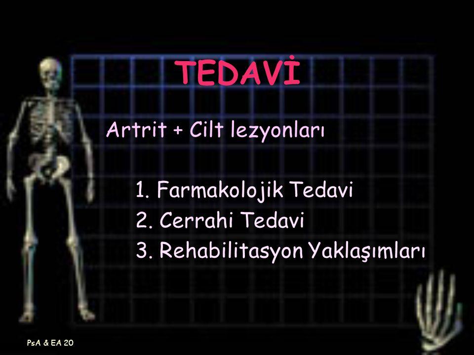 TEDAVİ Artrit + Cilt lezyonları 1. Farmakolojik Tedavi