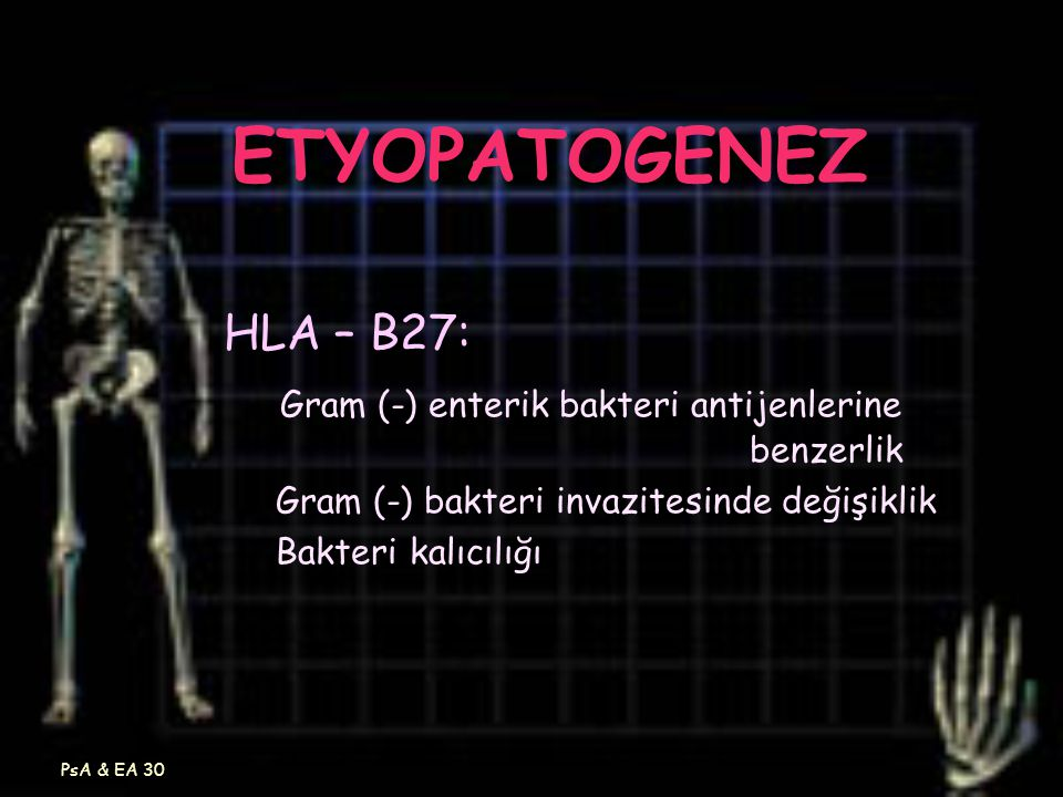 ETYOPATOGENEZ HLA – B27: Gram (-) enterik bakteri antijenlerine benzerlik.